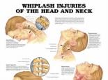 Thumbnail bij Whiplash