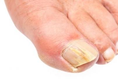 Afbeelding bij Deelbehandeling Mycose (schimmel) nagel